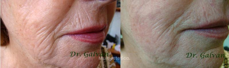 Recuperación de la piel