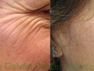 Eliminación arrugas-381734