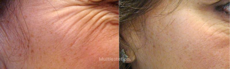"""Reducción de arrugas de expresión con toxina botulínica (""""botox"""")"""