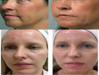 Eliminación arrugas - 587131