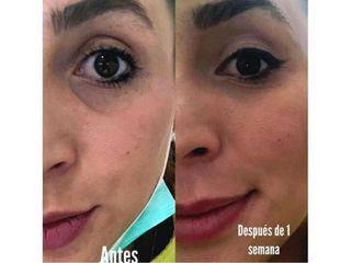Eliminación de ojeras - Clínica Carmona