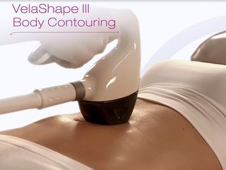VelaShape III Treatment Photo.jpg