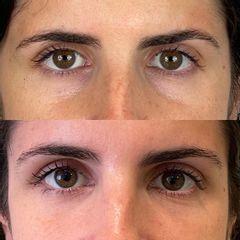 Eliminación de ojeras - Dr. Sebastián Ríos