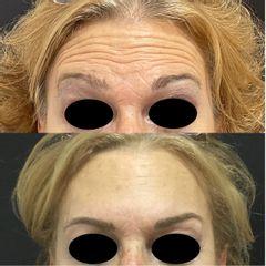 Botox - Dr. Sebastián Ríos