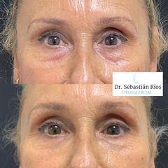 Relleno de ojeras - Dr. Sebastián Ríos