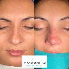 Rinoplastia - Dr. Sebastián Ríos