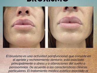 Medicina estética-737933