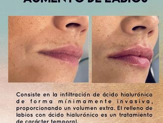 Aumento labios-737936