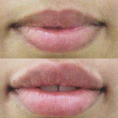 Antes y después Aumento de labios - Saona Clínicas De Estética