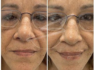 Aumento labios-737950