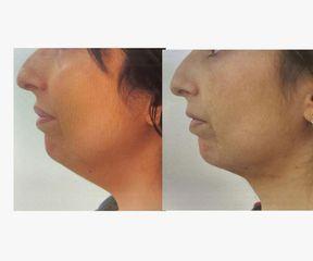 Antes y después Liposucción de papada - Saona Clínicas De Estética