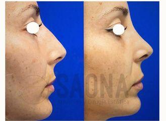 Antes y después Rinoplastia - Saona Clínicas De Estética