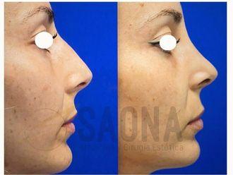Cirugía estética-737954