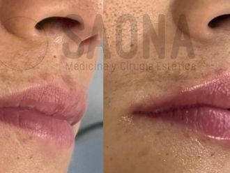 Aumento labios-775608