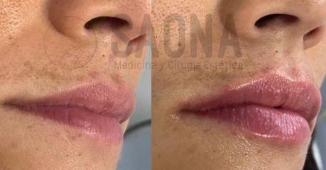 Aumento de labios - Saona Clínicas De Estética