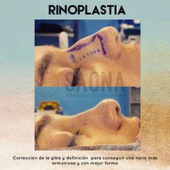 Rinoplastia - Saona Clínicas De Estética