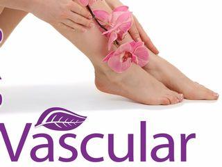 Tratamientos vasculares : varices, arañas vasculares, hemorroides, couperosis