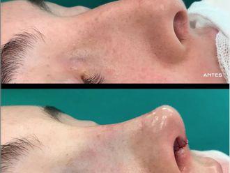 Cirugía estética-684936