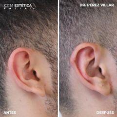 Otoplastia - Dr. Pérez Villar