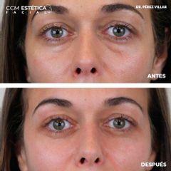 Eliminación de ojeras - Dr. Pérez Villar