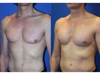 Cirugía reconstructiva-495195