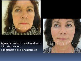 Medicina estética-529232
