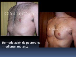 Implante de pectorales