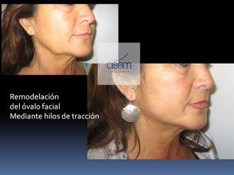Medicina estética-529273