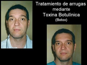 Bótox-529275