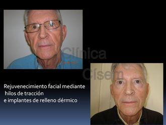 Rejuvenecimiento facial-529276