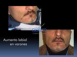 Aumento labial en varones