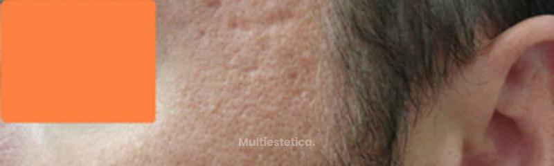 cicatrices acne 1 antes