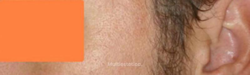 imagen cicatrices de acne 1 despues