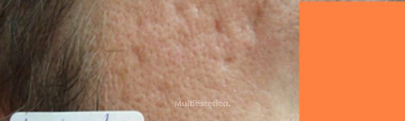 cicatrices acne 2antes