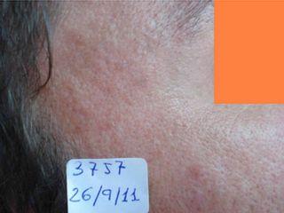 imagen cicatrices acne 2 despues