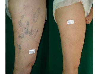 Tratamiento varices - 698942