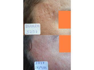 Tratamiento antiacné-698943