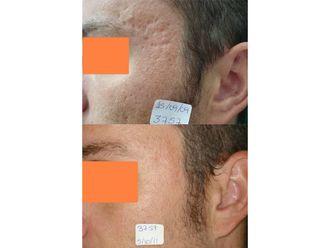 Tratamiento antiacné-698945