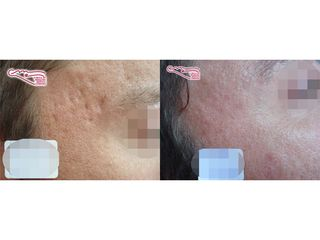 Antes y después Cicatrices por acné