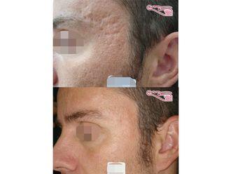 Tratamiento antiacné-736799