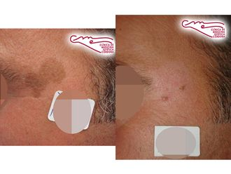 Tratamiento antimanchas-736801