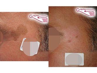 Tratamiento antimanchas - 736801