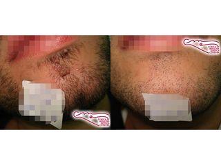 Antes y después Lesión dermatológica