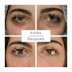 Eliminación de ojeras - Clínica De Medicina Estética Córdoba
