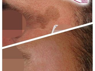 Tratamiento antimanchas - 786785