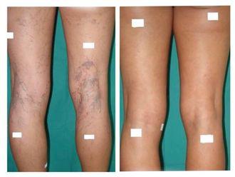 Tratamiento varices-786788
