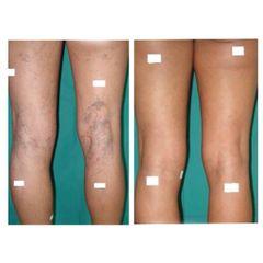 Tratamiento varices - Clínica De Medicina Estética Córdoba