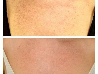 Dermatología-790146