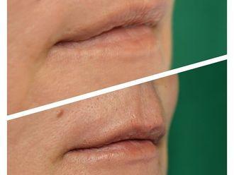 Aumento labios - 790147