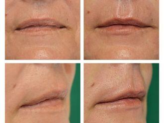 Aumento labios - 790148